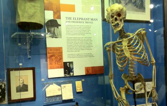 Esqueleto de John Merrick que se conserva en el hospital de Londres