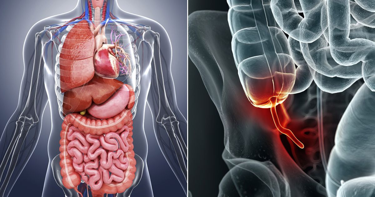 sintomas apendicitis